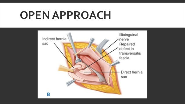 inguinal hernia, Muscles
