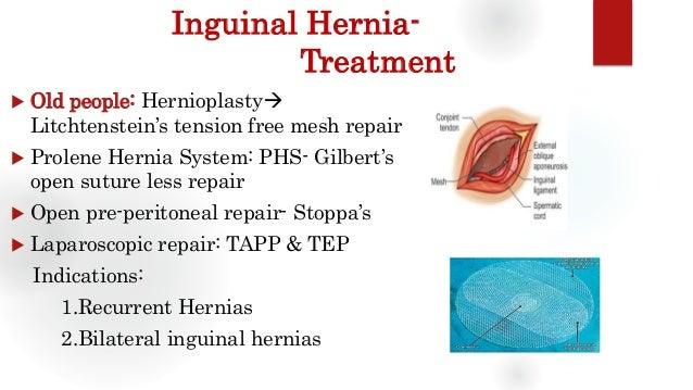 Inguinal Hernia Groin Swellings