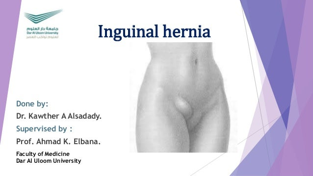 Inguinal hernia Done by: Dr. Kawther A Alsadady. Supervised by : Prof. Ahmad K. Elbana. Faculty of Medicine Dar Al Uloom U...