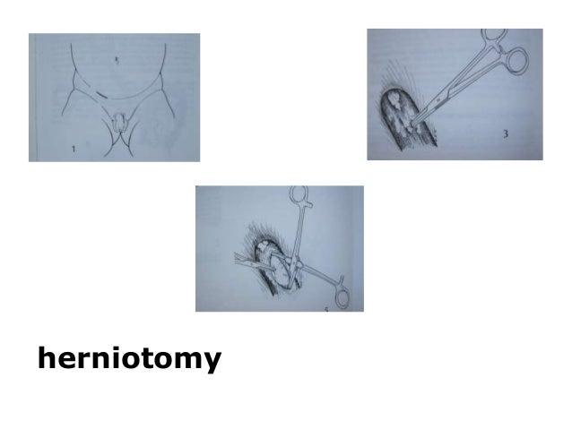 herniotomy
