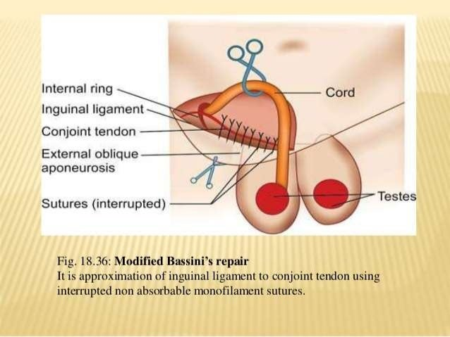 LYTLE'S REPAIR • Narrowing of the deep ring by placing interrupted sutures over the medial side of the ring to the transve...