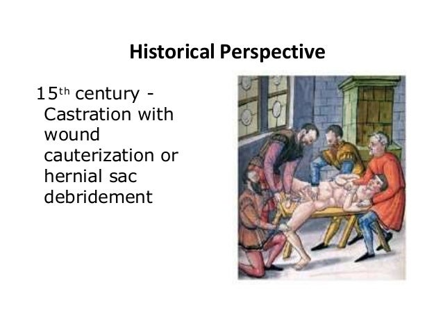 Historical Perspective 15th century - Castration with wound cauterization or hernial sac debridement