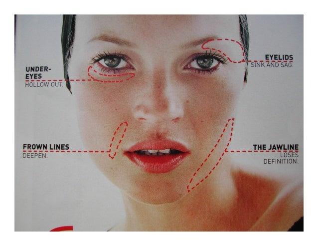 Nonsurgical Facial Rejuvenation Botox And Facial Fillers