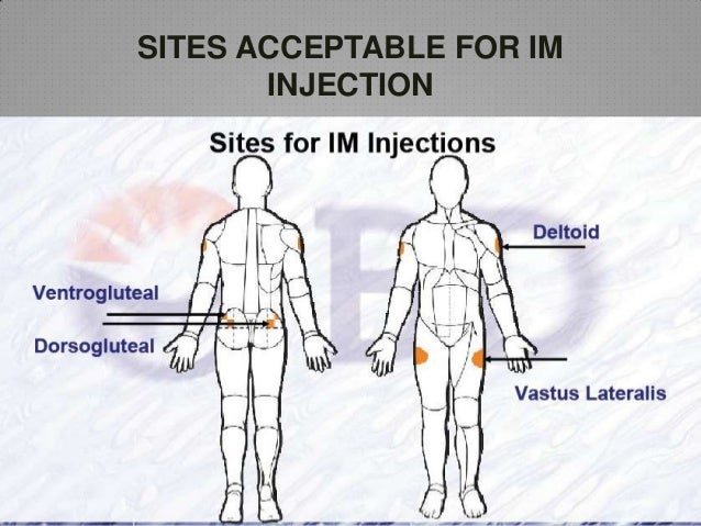 im injection sites - photo #4