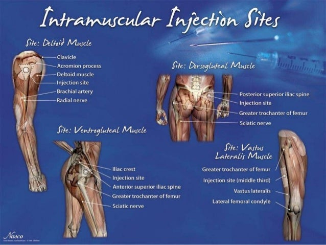 im injection sites -#main