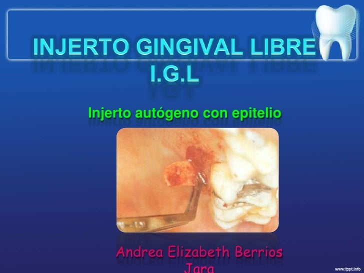 INJERTO GINGIVAL LIBREI.G.L<br />Injerto autógeno con epitelio<br />Andrea Elizabeth Berrios Jara<br />