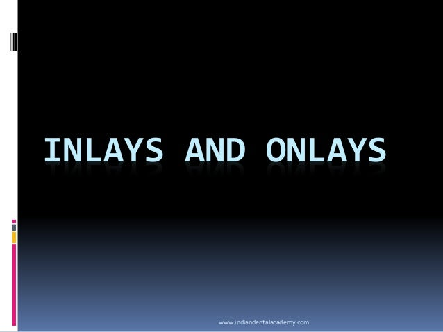 INLAYS AND ONLAYS www.indiandentalacademy.com
