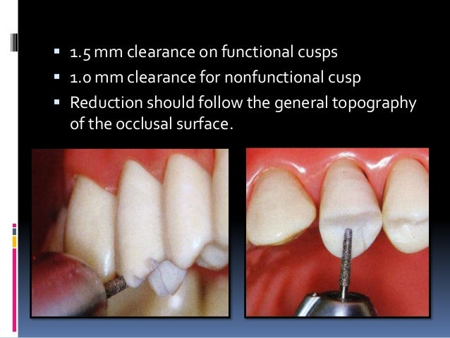Pulpal Floor Gingival Wall 5 Fundamental Of Cavity