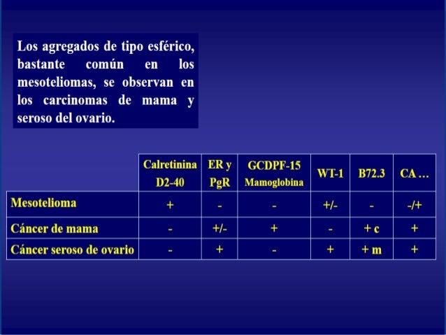 Inmunocitoquimica