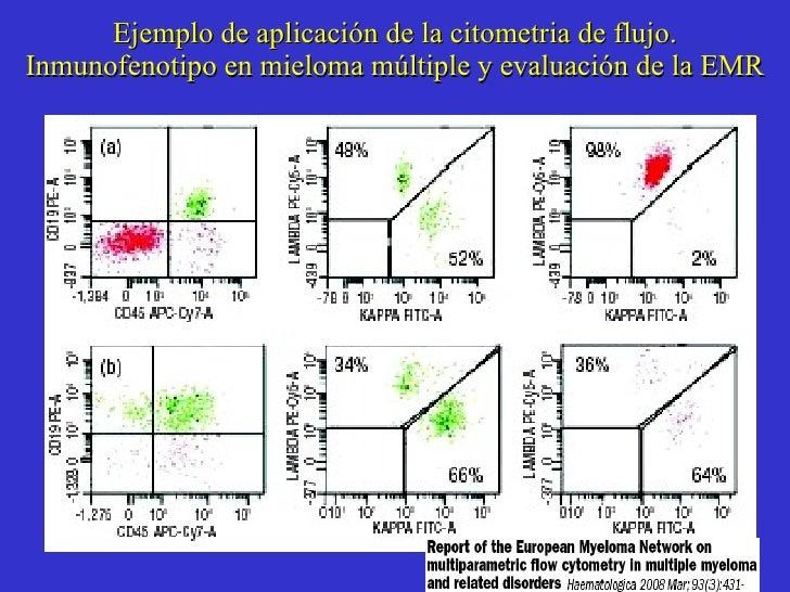 Ejemplo de aplicación de la citometria de flujo. Inmunofenotipo en mieloma múltiple y evaluación de la EMR