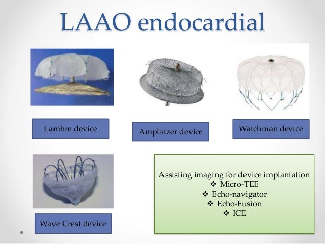 atrial fibrillation management guidelines 2012