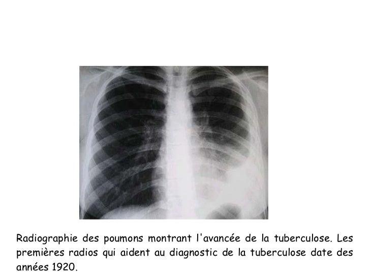 Radiographie des poumons montrant lavancée de la tuberculose. Lespremières radios qui aident au diagnostic de la tuberculo...