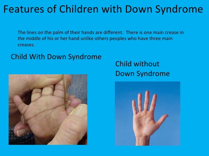the main characteristics of down syndrome Down syndrome (sometimes called down's syndrome) is a condition in which a child is born with an extra copy of their 21st chromosome — hence its other name, trisomy 21 this causes physical.