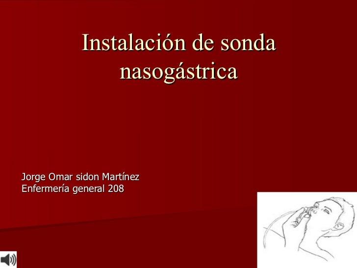 Instalación de sonda nasogástrica Jorge Omar sidon Martínez Enfermería general 208