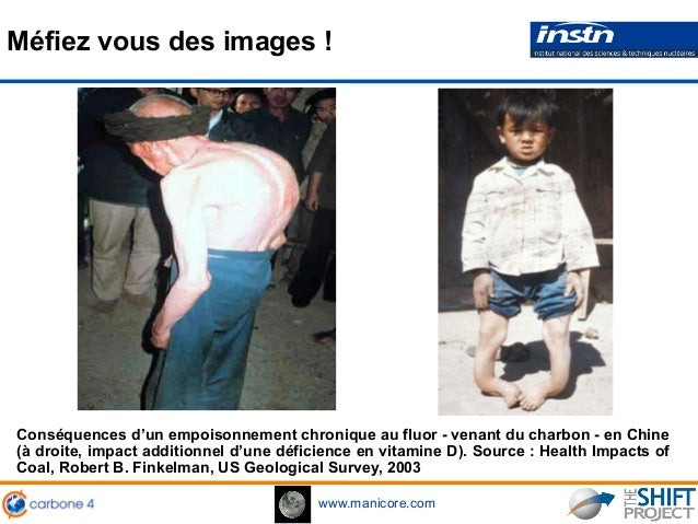 www.manicore.com Méfiez vous des images ! Conséquences d'un empoisonnement chronique au fluor - venant du charbon - en Chi...