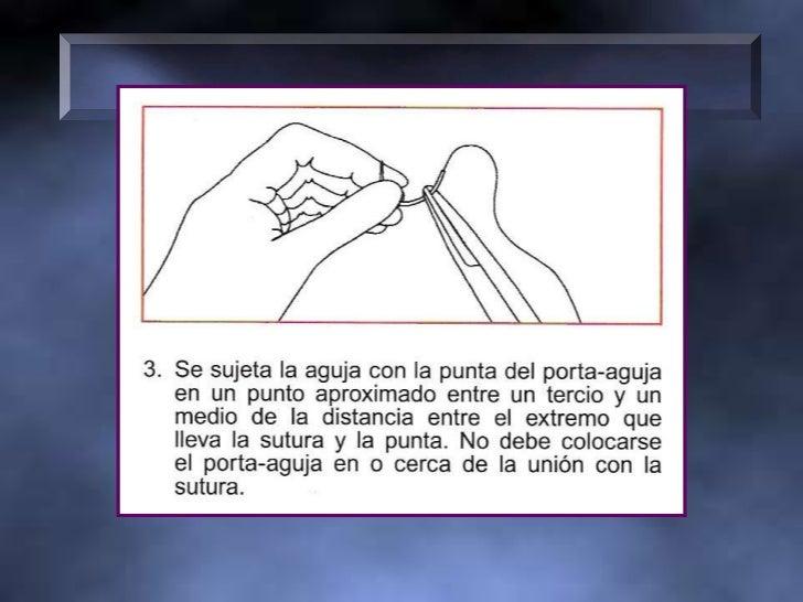 •SUPERFICIE DE LAS RAMAS DEL PORTA-AGUJAS