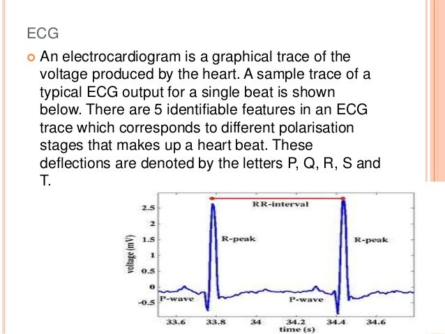Instrumentation amplifier in ECG