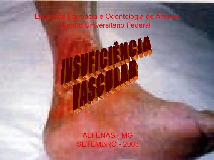 Escola de Farmácia e Odontologia de Alfenas Centro Universitário Federal  INSUFICIÊNCIA VASCULAR ALFENAS - MG SETEMBRO - 2...