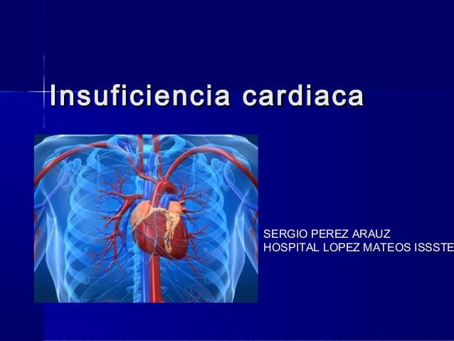 Insuficiencia cardiaca              SERGIO PEREZ ARAUZ              HOSPITAL LOPEZ MATEOS ISSSTE