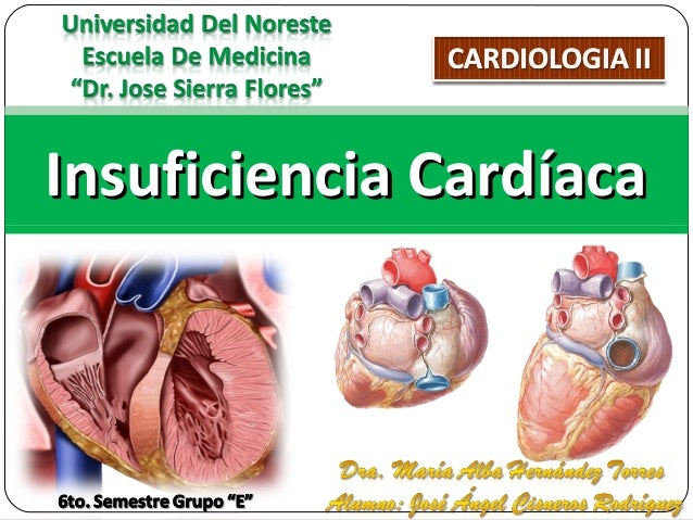 Insuficiencia CardíacaInsuficiencia Cardíaca