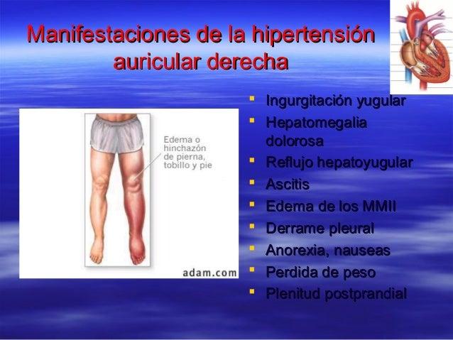 Manifestaciones de la hipertensiónManifestaciones de la hipertensión auricular derechaauricular derecha  Ingurgitación yu...