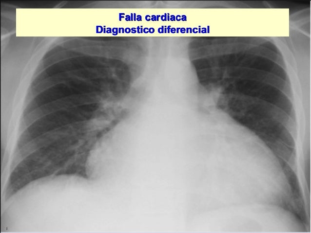 Jessup,M.Brozena,S.Heart failure.NEJM.Mayo 15,2003 Falla cardiacaFalla cardiaca Diagnostico diferencialDiagnostico diferen...
