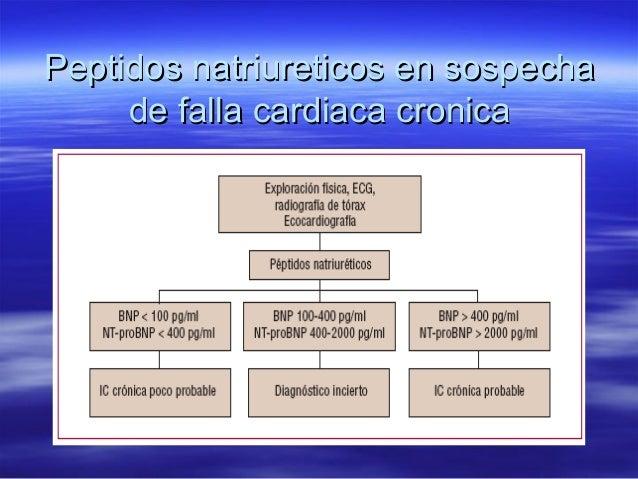 Peptidos natriureticos en sospechaPeptidos natriureticos en sospecha de falla cardiaca cronicade falla cardiaca cronica