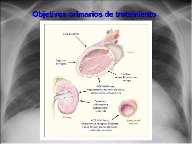 Objetivos primarios de tratamientoObjetivos primarios de tratamiento