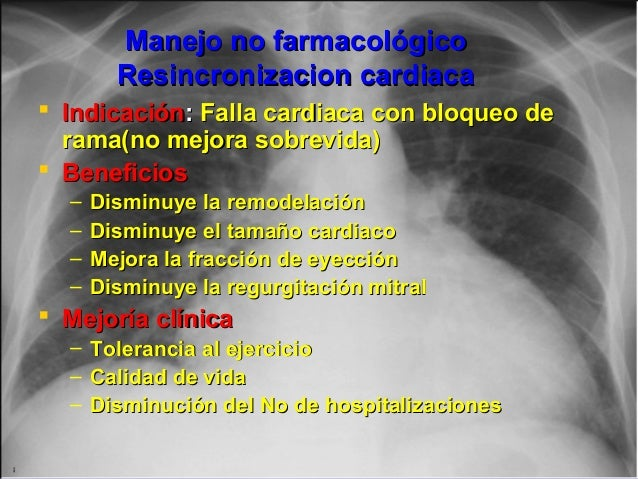 Jessup,M.Brozena,S.Heart failure.NEJM.Mayo 15,2003 Manejo no farmacológicoManejo no farmacológico Resincronizacion cardiac...