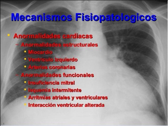 Mecanismos FisiopatologicosMecanismos Fisiopatologicos  Anormalidades cardiacasAnormalidades cardiacas – Anormalidades es...