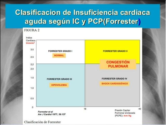 Jessup,M.Brozena,S.Heart failure.NEJM.Mayo 15,2003 Clasificacion de Insuficiencia cardiacaClasificacion de Insuficiencia c...
