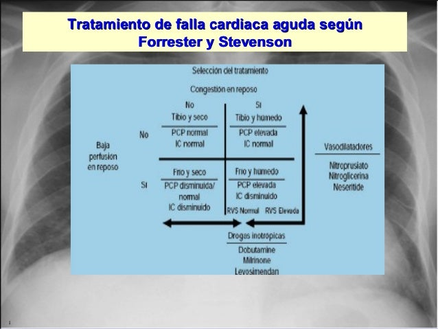 Jessup,M.Brozena,S.Heart failure.NEJM.Mayo 15,2003 Tratamiento de falla cardiaca aguda segúnTratamiento de falla cardiaca ...