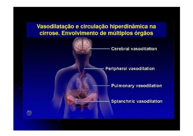 Insuficiência Hepática Aguda Alterações Clínicas