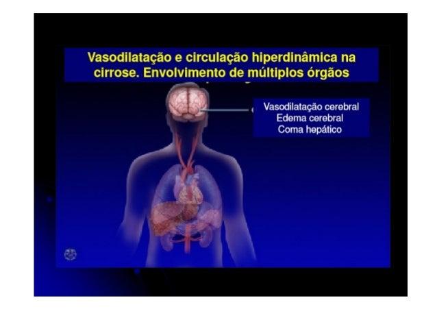Causas mais comuns de Insuficiência Hepática Crônica • Hepatite C • Doença hepática alcoólica • Esteato-hepatite não alcoó...