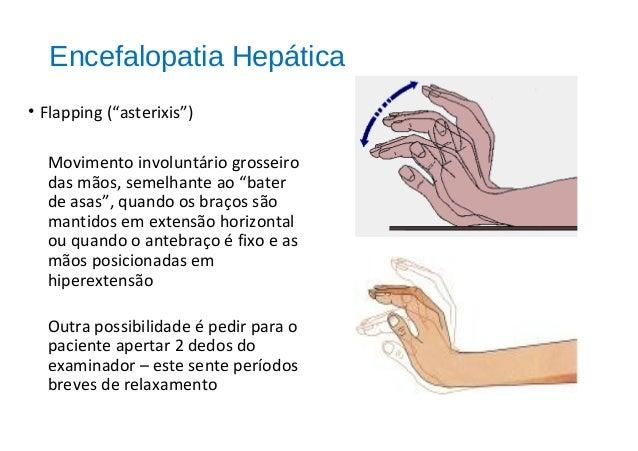 MECANISMO PRINCIPAL DE MANUTENÇÃO DA HIPERTENSÃO PORTAL