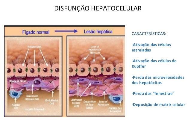DISFUNÇÃO HEPATOCELULAR CARACTERÍSTICAS: -Ativação das células estreladas -Ativação das células de Kupffer -Perda das micr...