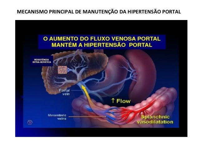 Hipertensão Portal – classificação:Hipertensão Portal – classificação: baseada no local onde há resistência aumentadabasea...