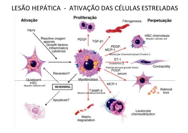 LESÃO HEPÁTICA - ATIVAÇÃO DAS CÉLULAS ESTRELADAS Hepatic stellate cell Hepatic stellate cell Platelet derived growth facto...