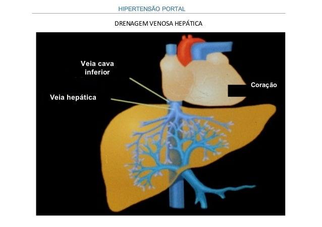 Conseqüentemente, as hipertensões portais podem serConseqüentemente, as hipertensões portais podem ser classificadas como ...