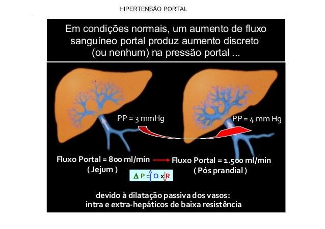 Circulação colateral • A circulação colateral abdominal superficial é identificada na parede abdominal anterior e caracter...