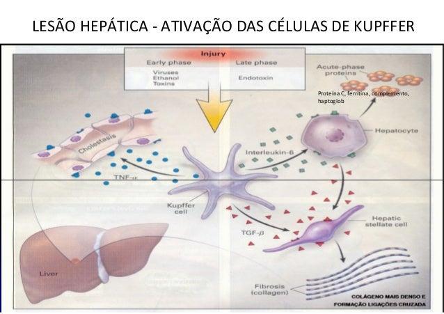 LESÃO HEPÁTICA - ATIVAÇÃO DAS CÉLULAS DE KUPFFER Proteína C, ferritina, complemento, haptoglob