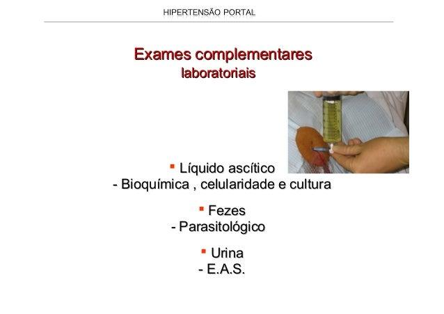 A hipertensão portal é manifestação clínica séria de váriasA hipertensão portal é manifestação clínica séria de várias doe...
