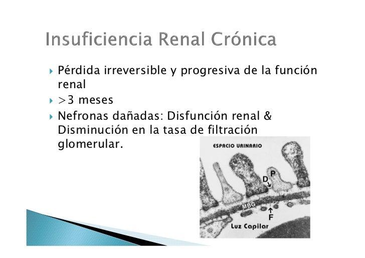 Insuficiencia renal crónica (rotación patología clínica) Slide 2