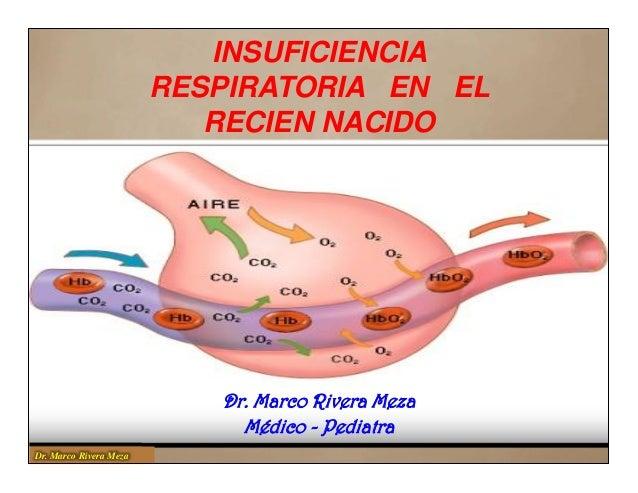 Insuficiencia respiratoria en el Recién Nacido