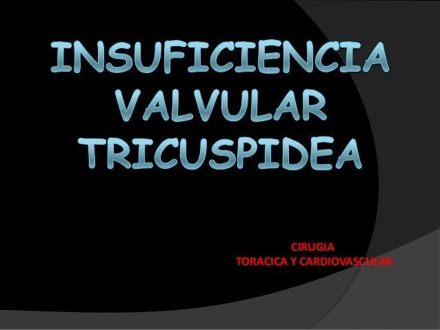 CIRUGIA TORACICA Y CARDIOVASCULAR