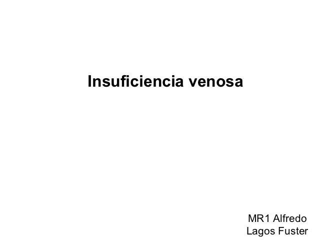 Insuficiencia venosa                       MR1 Alfredo                       Lagos Fuster