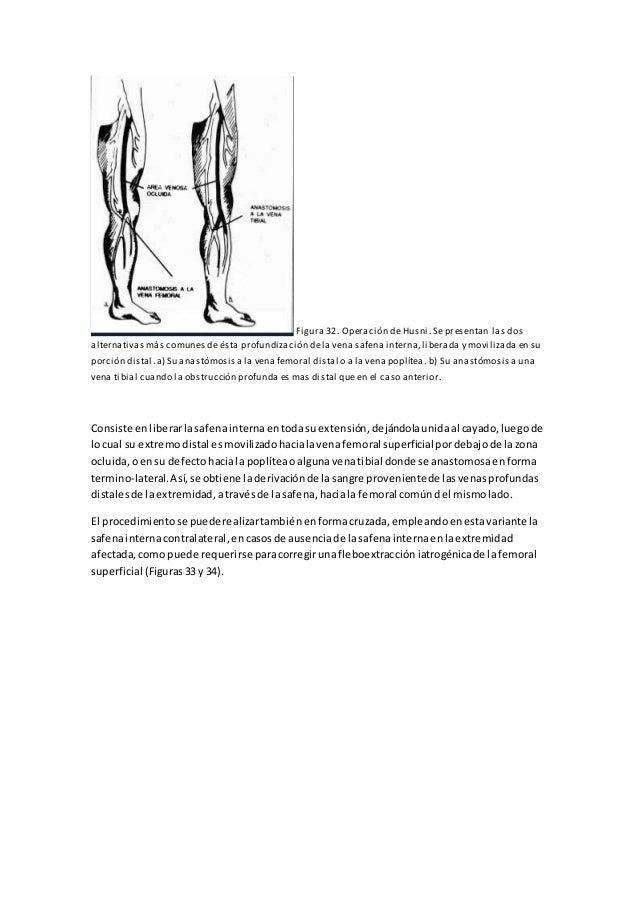Moderno Femoral Anatomía De Derivación Poplítea Fotos - Imágenes de ...