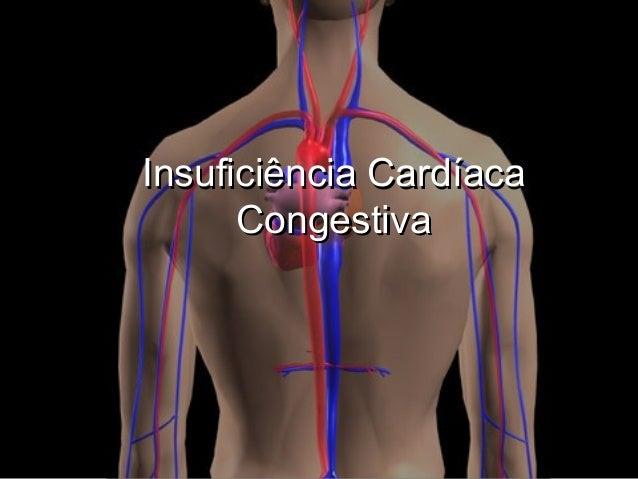 Insuficiência Cardíaca Congestiva