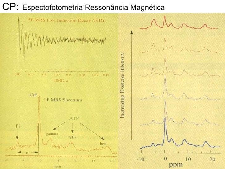 CP:   Espectofotometria Ressonância Magnética