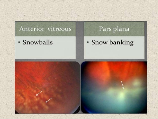 Optic Neuritis moreover Your Dentist Can Save Your Life furthermore Anca Talk as well Connective Tissue Diseases 43352673 in addition P2197. on in vasculitis disease